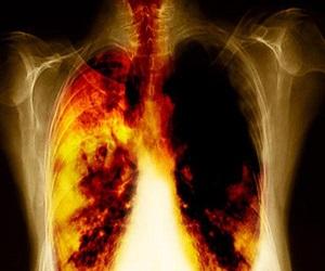 Описание болезни «бронхиолоальвеолярный рак»