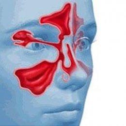 МРТ пазух носа: показания